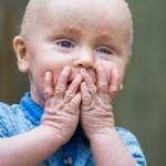 ΓΝΩΡΙΣΤΕ το αγοράκι με τα ΛΕΠΙΑ: Σπάνια δερματική πάθηση ταλαιπωρεί το 18 μηνών αγγελούδι
