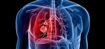 Προσοχή: Απλά σημάδια που δείχνουν καρκίνο του πνεύμονα