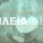 Ηλεία: Η ακτινογραφία που κάνει το γύρο του διαδικτύου – Δείτε τι είχε καταπιεί ένας νεαρός που πήγε στο νοσοκομείο (Φωτό)!